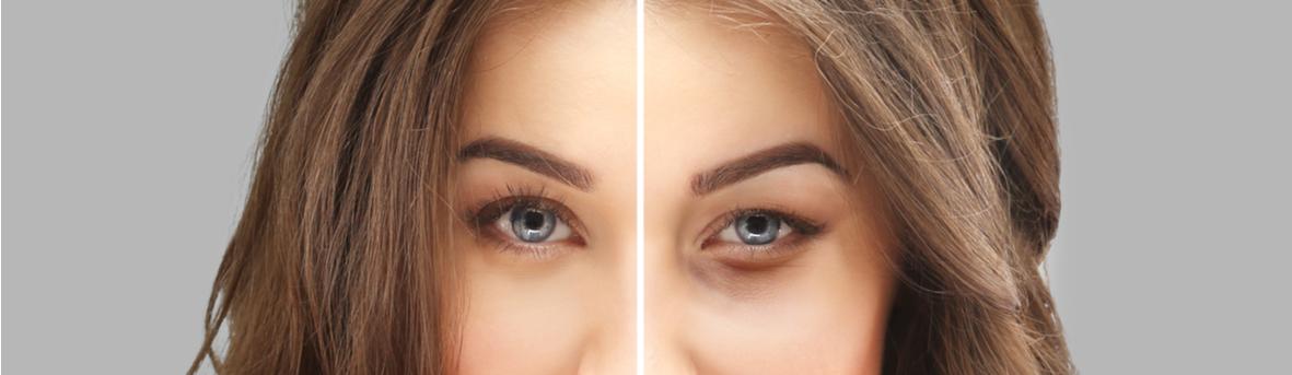 Behandeling ooglidcorrectie, technieken van een ooglidcorrectie. Herstellen van een ooglidcorrectie. Ooglidcorrectie, hoe lang herstel?