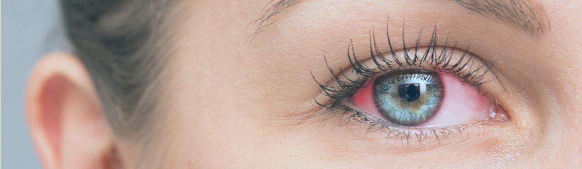 Symptomen ontstoken ogen, wat kan ik doen bij een ontstoken oog, tips ontstoken oog, oorzaken ontstoken oog.