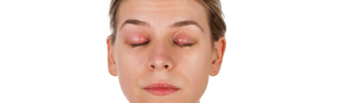 Oorzaak van een buitje op het ooglid. Wat is een chalizion.