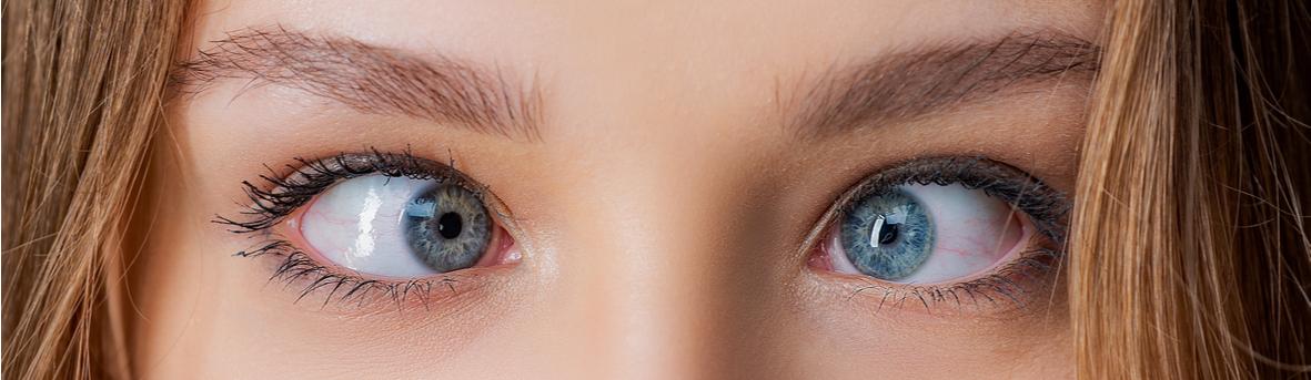 Wat zijn de oorzaken, symptomen en behandeling voor scheelzien. Scheelzien bij kind. Scheelzien corrigeren