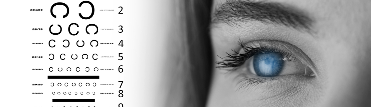 Oogafwijkingen. Hoe werkt een oogmeting. Welke oogafwijkingen zijn er? Verziend, bril voor veraf. Bril voor dichtbij. Leesbril. Cilinderafwijking ogen
